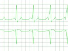 Normal Heart Rhythm Stock Illustration