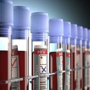 Stock Illustration of HIV Negative