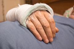 Plastered hand of man - stock photo