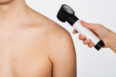 Close-up Of Person Hands Examining Acne Skin Of Man With Dermatoscope - stock photo