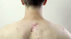 Wound scar on male back with tape over 4K Stock Footage