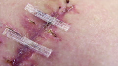 Bandages holding together stitched scar macro 4K Stock Footage