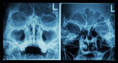 Film x-ray paranasal sinus show frontal sinus , maxillary sinus , ethmoid sin - stock photo