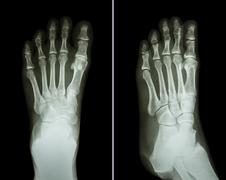 Film x-ray both foot ( 2 position : front view and side view ) - stock photo