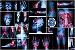 X-ray multiple disease ( stroke (CVA) , fracture , shoulder dislocation , bow Stock Photos