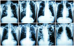 Pulmonary Tuberculosis Collection .  Chest X-ray : show patchy infiltration , Kuvituskuvat