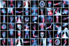 X-ray multiple disease of child and adult ( Stroke , Arthritis , Fracture , T Stock Photos