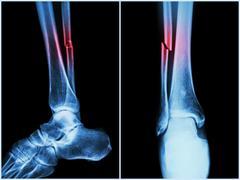 Fracture shaft of fibula bone ( leg bone ) .  X-ray of leg ( 2 position : sid - stock photo