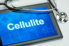 Stock Illustration of Tablet with the diagnosis Cellulite on the display
