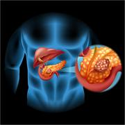 Pancreas cancer diagram in human body - stock illustration