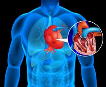 Human heart with cancer - stock illustration