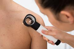 Close-up Of Person Hands Examining Acne Skin Of Man With Dermatoscope Stock Photos