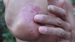 A patient with psoriasis - stock footage