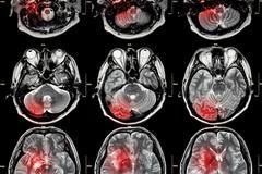 Film MRI ( Magnetic resonance imaging ) of brain ( stroke , brain tumor , cer Stock Photos