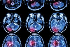 Film MRI ( Magnetic resonance imaging ) of brain ( stroke , brain tumor , cer - stock photo