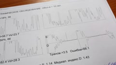 Printed results of encephalographic survey with charts Stock Footage