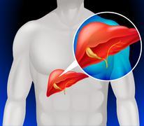 Liver cancer diagram in detail - stock illustration