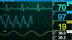 Heartbeat monitor screen Stock Footage
