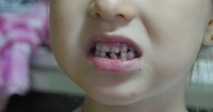 Losing Tooth Wobbly Tooth Kid's Mouth Close Up Girl's Face Close Up Eyes Girl - stock footage