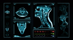 Neck MRI Scan. Blue.  3 in 1. - stock footage