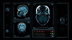 Brain MRI Scan. Blue. 3 in 1. Stock Footage