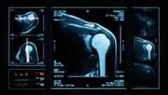 Shoulder MRI Scan. Blue. 4 in 1. Stock Footage