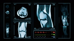 Knee MRI Scan. Blue. 4 in 1. Stock Footage