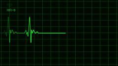 ECG EKG Electrocardiogram Monitor Deadline green Arkistovideo