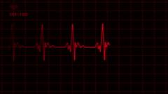 ECG EKG Electrocardiogram Monitor Normal Red Arkistovideo