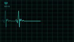 ECG EKG Electrocardiogram Monitor Dead Line blue Stock Footage
