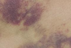 Closeup on a Bruise on wounded woman leg skin Stock Photos
