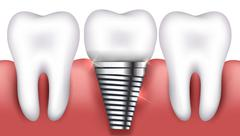 Dental implant and normal tooth Stock Illustration