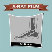 Foot x-ray. Vector Stock Illustration