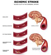 Blood clot formation in the cerebral artery Stock Illustration