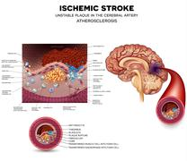 Unstable plaque formation and thrombus in the brain - stock illustration