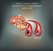 Healthy and unhealthy brain arteries - stock illustration