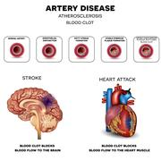 Artery disease, Atherosclerosis, Stroke and Heart attack - stock illustration
