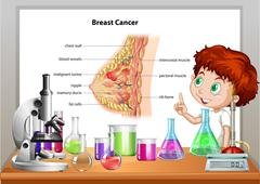 Boy in science class explaining breast cancer - stock illustration