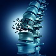 Spinal Fracture - stock illustration