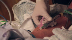 Nurse drawing blood from senior patients arm - stock footage