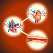 Cholesteral in human heart - stock illustration