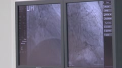 Stock Video Footage of the monitors in the operating room ,vascular surgery,medical therapy