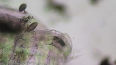 Coleps Ciliate, Microscopy - stock footage