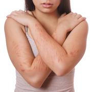 Cuts and scars from self harm Stock Photos