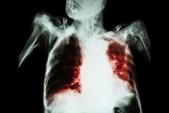 Pulmonary Tuberculosis with acute respiratory failure ( Film chest x-ray of o Stock Photos