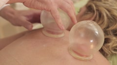 Cupping treatment on the back of a patient Stock Footage