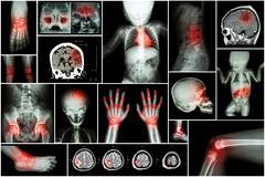X-ray multiple part of child 's body & multiple disease ( stroke , brain tumo Stock Photos