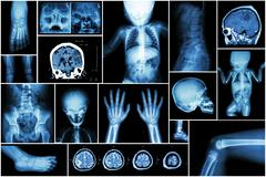 X-ray multiple part of child 's body & multiple disease ( stroke , brain tumo - stock photo