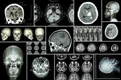 Stock Photo of Set , Collection of brain disease ( Cerebral infarction , Hemorrhagic stroke