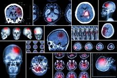 Set , Collection of brain disease ( Cerebral infarction , Hemorrhagic stroke - stock photo